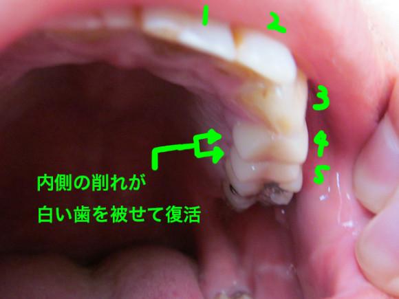 白い歯適用後_その3