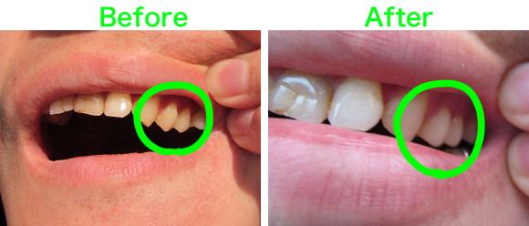 白い歯比較画像その1