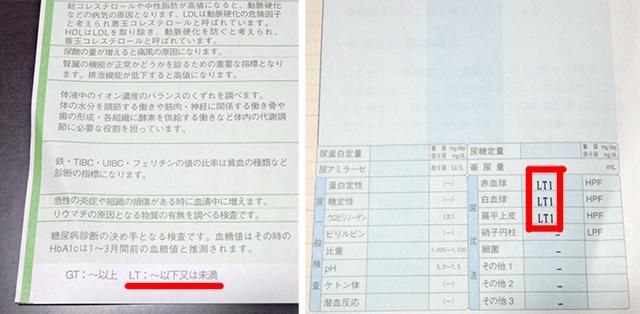 尿検査の結果_ズーム