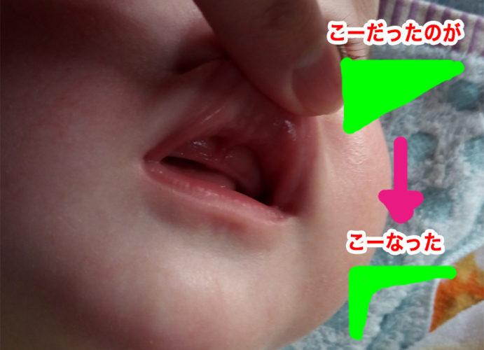 上唇小帯切除2週間後